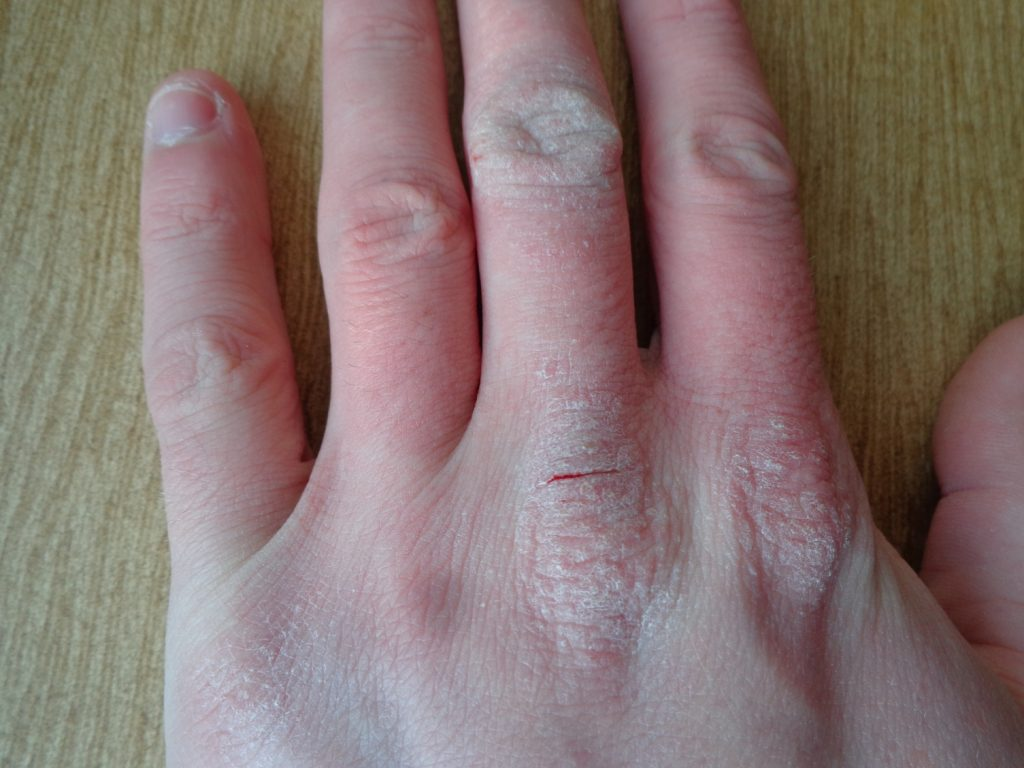 Atopic dermatitis hand - BioSol